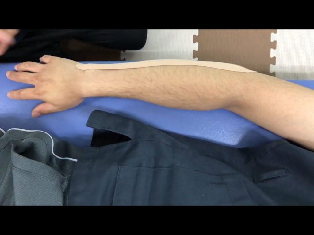 テニス肘のテーピング