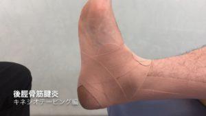 後脛骨筋炎のテーピング