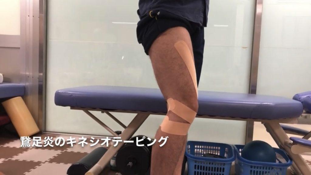 鵞足炎のテーピング