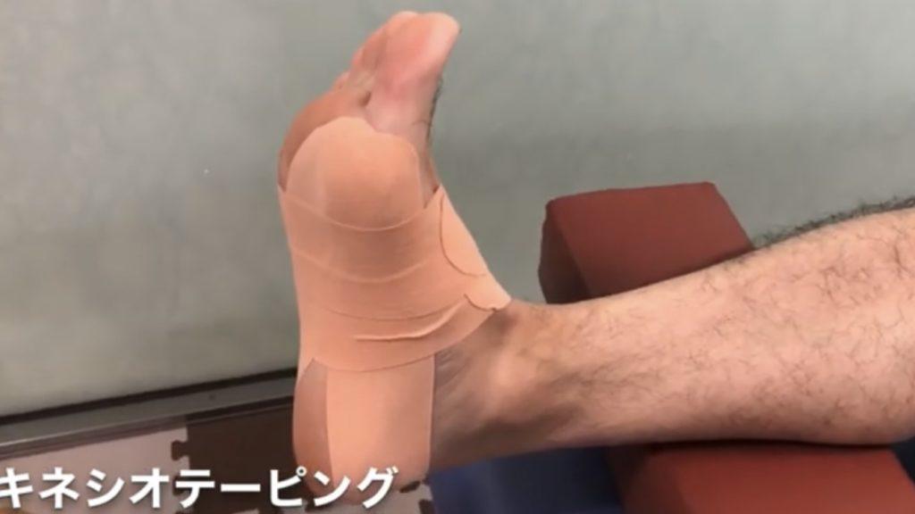 リスフラン関節損傷