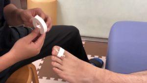 足の突き指のテーピング