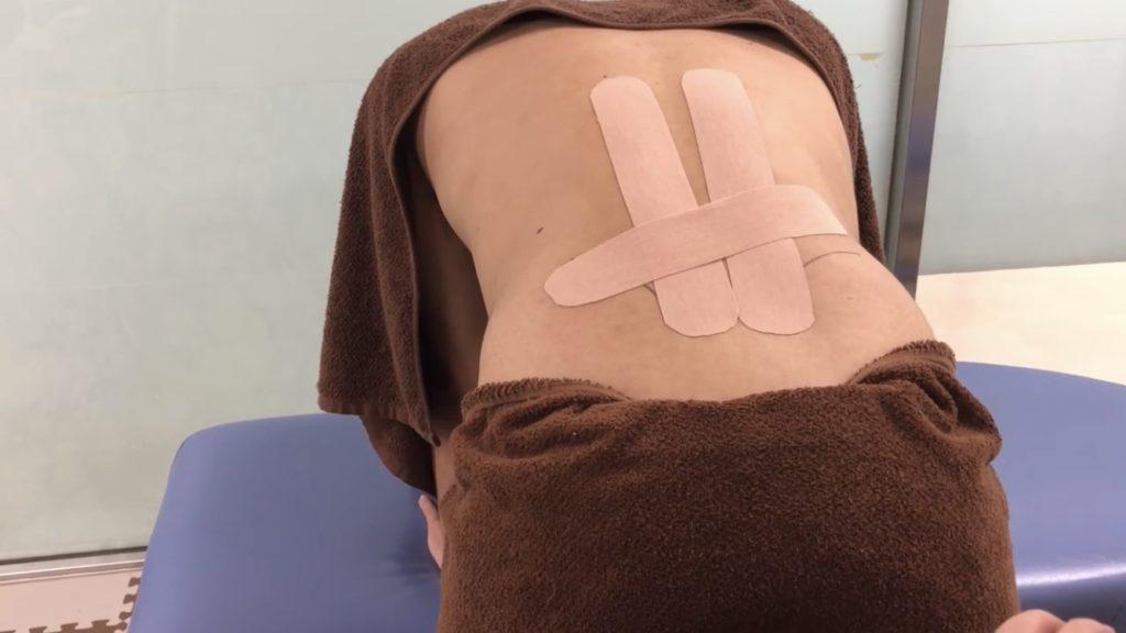 腰痛のテーピング