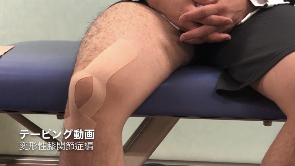 変形性膝関節症のキネシオテーピング