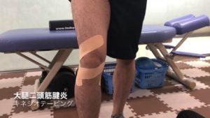 大腿二頭筋腱炎